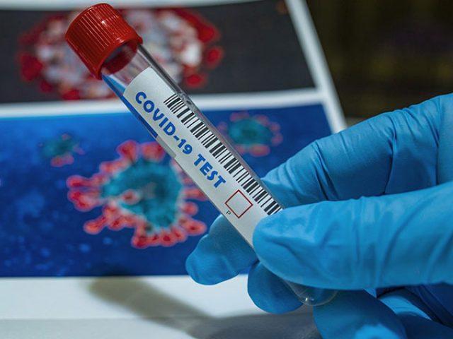 naslovna-slika-korona-virus-testiranje